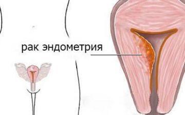 Как диагностировать и предопределить наличие рака эндометрия у женщины