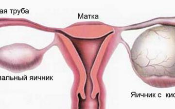Диагностика и лечение серозной цистаденомы яичника