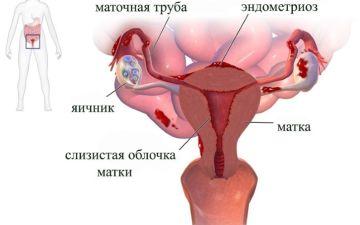 Основная симптоматика и способы лечения патологии внутреннего слоя матки — эндометрита