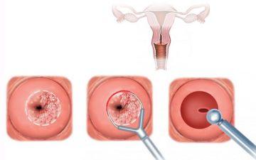 Как правильно делать биопсию шейки матки: больно ли это, виды процедур