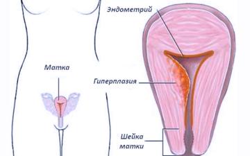 Как восстановить цикл месячных при гиперплазии эндометрия