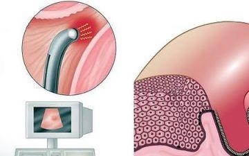 Когда стоит делать абляцию эндометрия матки: особенности процедуры, последствия