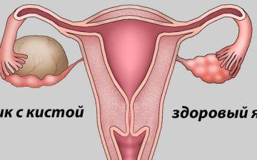 Какие симптомы могут сигнализировать о наличии кисты яичника