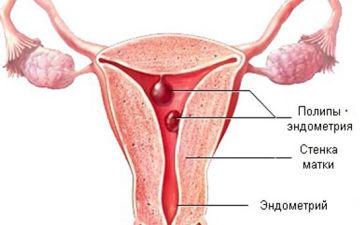 Основное лечение и осложнения при фиброзном полипе эндометрия