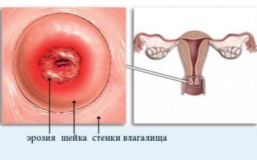 Как лечить эрозию шейки матки у девушек: причины, подбор терапии