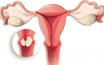 Причины появления и методы лечения ретенционных кист шейки матки