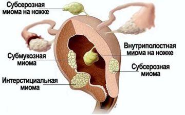 Что такое субсерозный миоматозный узел: диагностика, лечение, питание