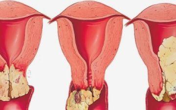 Что влияет на формирование метастаз рака шейки матки