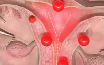 Атрофический эндометрий — что лежит в основе заболевания