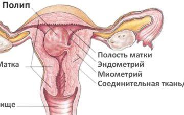 Беременность и успешные роды при тонком эндометрии — миф или реальность?