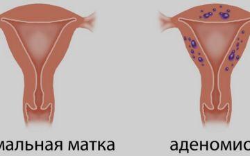 Что отличает аденомиоз от эндометриоза?