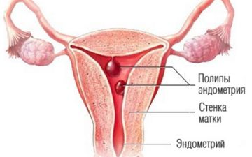 Основная симптоматика и лечение полипоза эндометрия (матки)