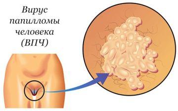 Чем грозит ВПЧ наряду с эрозией шейки матки?