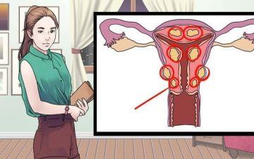 Как справиться с субсерозной миомой матки при беременности