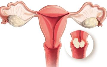 Что лежит в основе причин рака шейки матки — РШМ