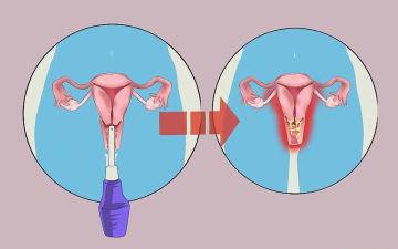 Что нужно знать о спринцевании при эрозии шейки матки?