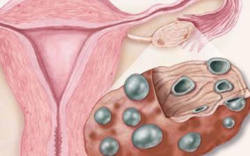 Лапароскопический метод лечения поликистоза яичников