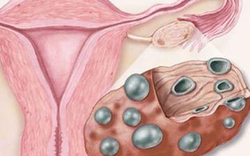 Основные признаки поликистоза яичников: выявление, лечение, последствия