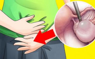 Что такое функциональная киста яичника