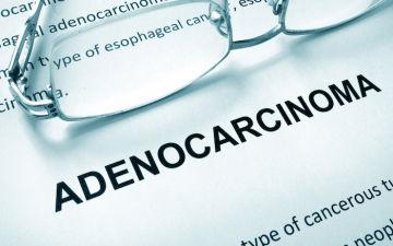 Злокачественные опухоли женских половых органов: аденокарциномы матки, и другие образования