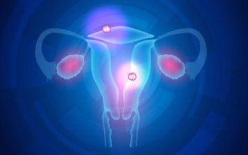 Какой способ лечения выбрать, если диагностировали многоузловую миому матки?