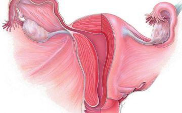 Разрастание эндометрия в матке: описание патологии толстого эндометрия, лечение