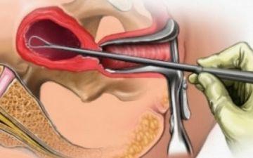 Диагностическое выскабливание при гиперплазии эндометрия: особенности процедуры, отзывы