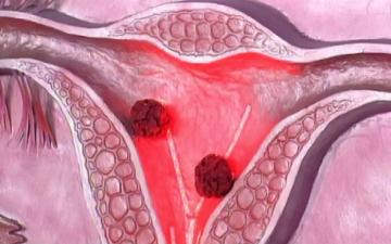 Этиология, симптоматика высокодиффиренцированной аденокарциномы эндометрия