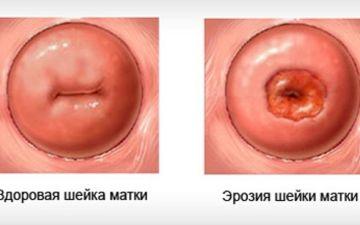 К чему может привести эрозия шейки матки: последствия, опасность рецидивов