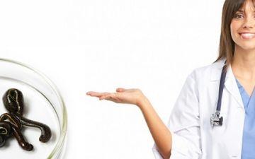 Как лечить кисту яичника пиявками