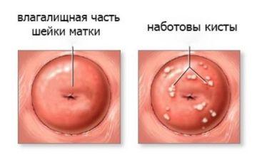 Как лечить наботовы кисты шейки матки
