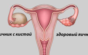 Лечение эндометриодиной кисты яичника