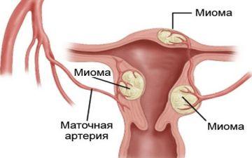 Что нужно знать об интерстициальной миоме матки