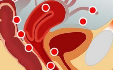 Особенности лечения эндометриоза: основные компоненты терапии, длительность лечения, отзывы