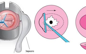 Лечение эрозии шейки матки радиоволновым методом