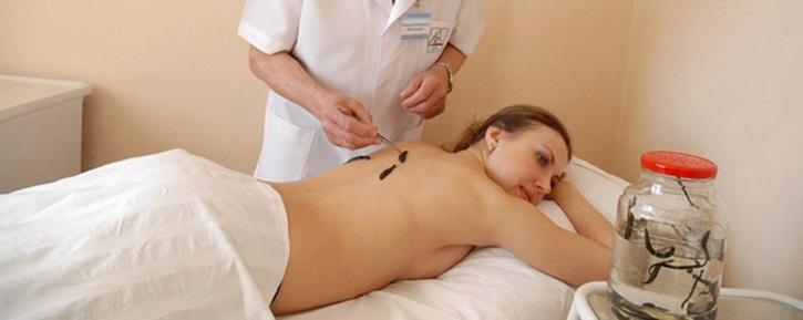 Крепление пиявок при лечении миомы в зоне спины