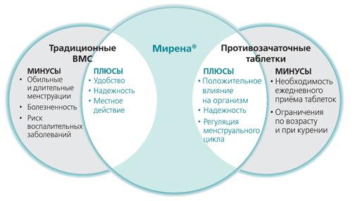 Внутриматочная спираль Мирена при миоме. Преимущества