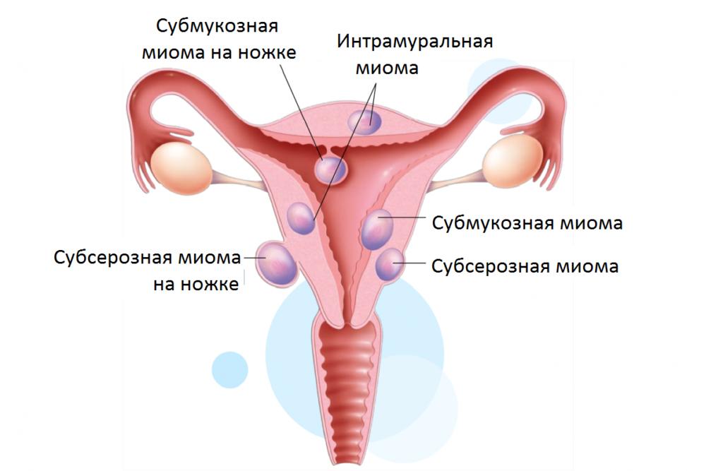 вид узловой миомы матки