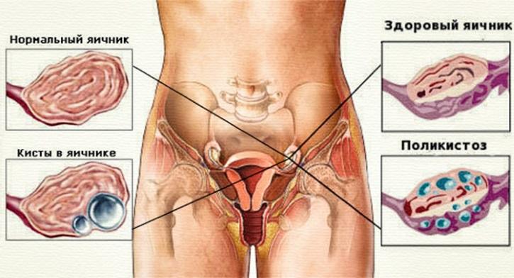 внешний вид здоровых яичников женщины в сравнении с больными яичниками - поликистозом