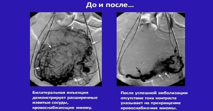Сравнительные результаты ЭМА на УЗИ. До и после операции.