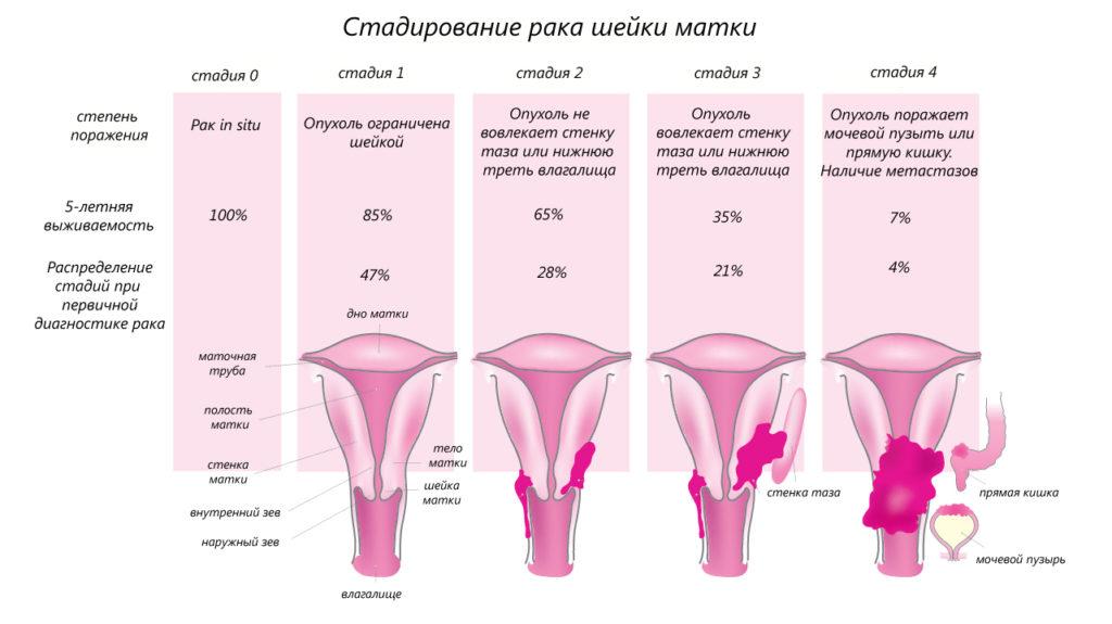 злокачественные образования в матке, стадии, площадь поражения