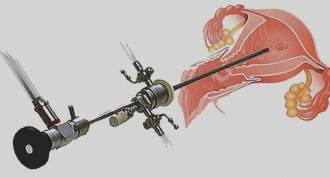 Применение гистероскопа