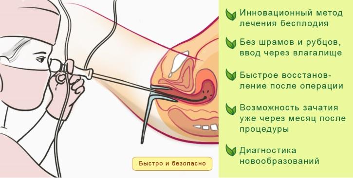 Гистероскопия миомы матки