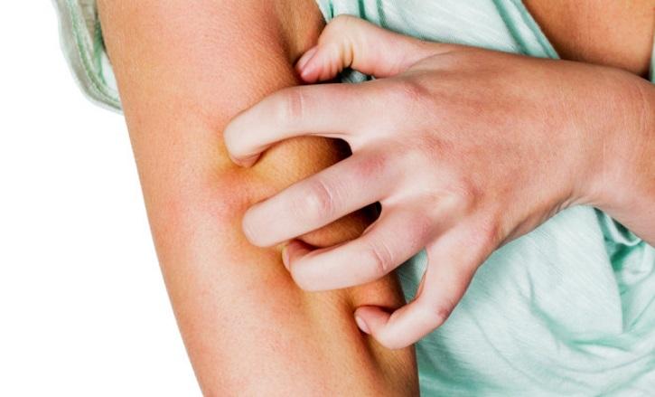 Аллергия как побочный эффект при Норкалуте