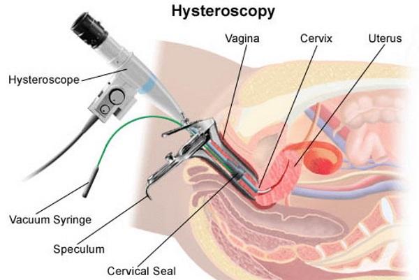 Гистероскопия лучше выскабливания