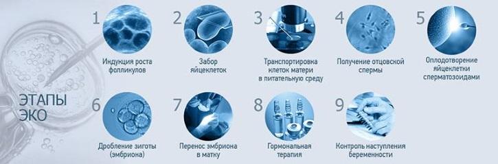 Этапы ЭКО при миоме матки