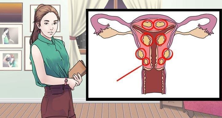 Миома матки и беременность опасно ли это последствия для ребенка отзывы