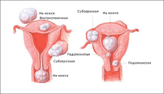 диагностика фибромы матки