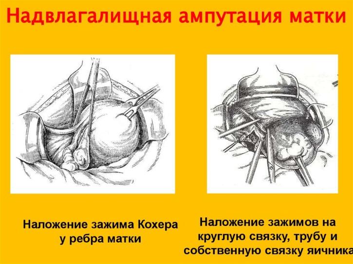 vlagalishnaya-gisterektomiya-bez-pridatkov