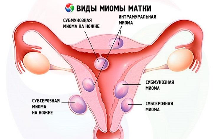 Причины миомы